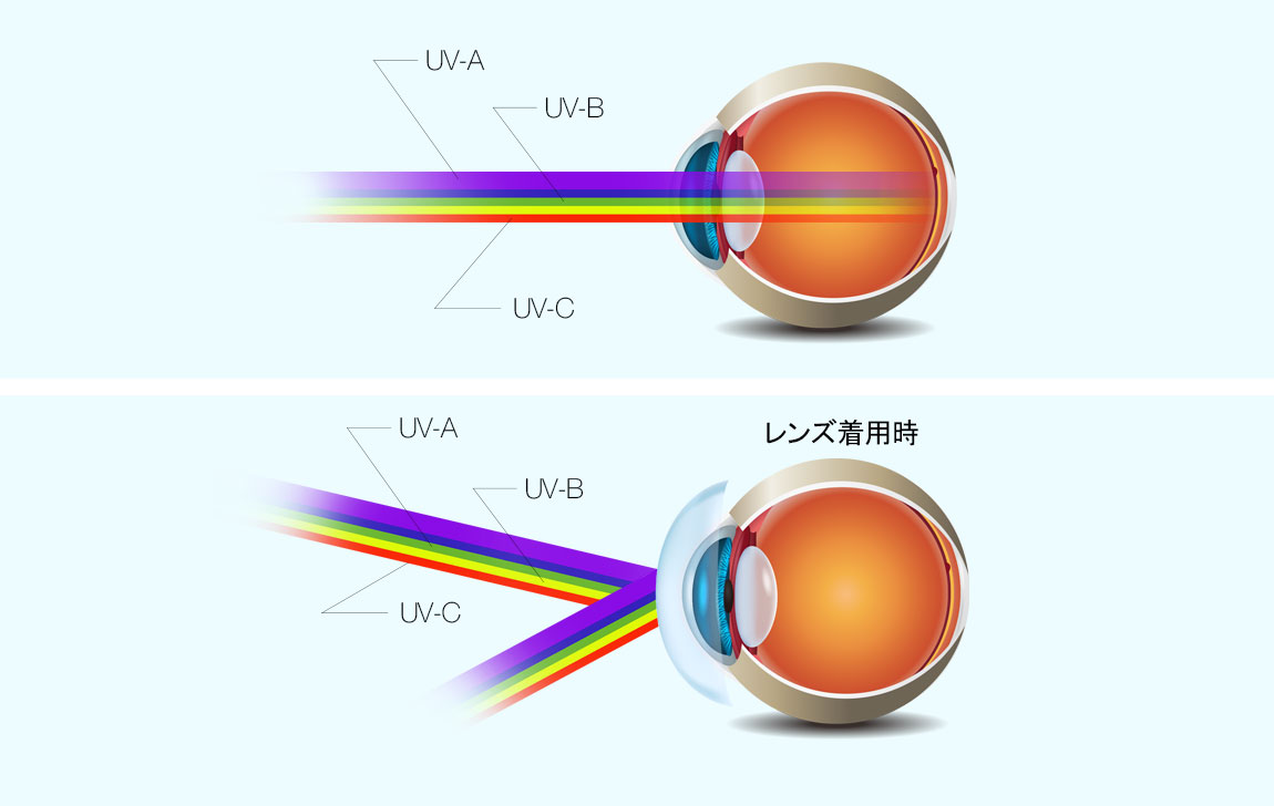 UV blocking by lens